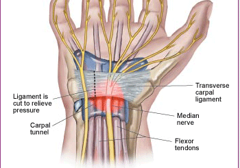 Massage Can Be a Light at the End of the Carpal Tunnel (video included)